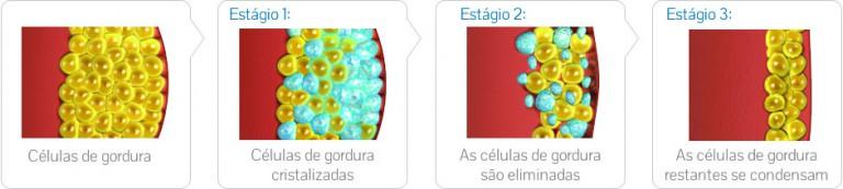 criolipolise-gordura